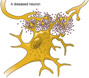 diseased_neuron